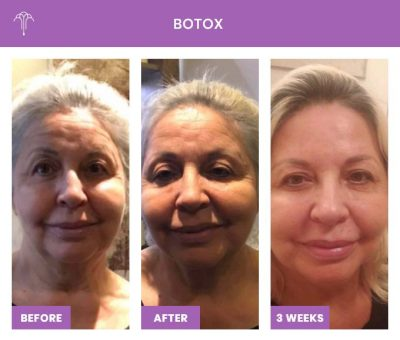 Botox FOY NYC