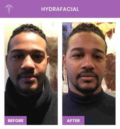 HydraFacial – 1 FOY NYC