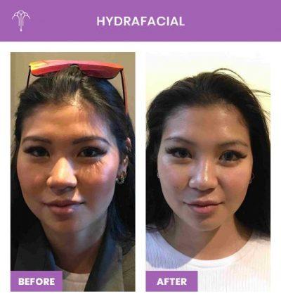 HydraFacial – 2 FOY NYC