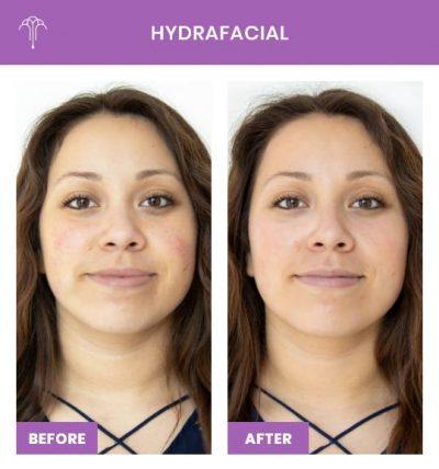 HydraFacial – 3 FOY NYC