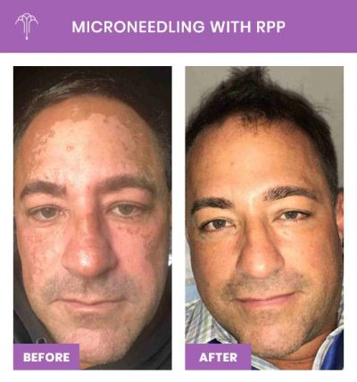 Microneedling with RPP – 1 FOY NYC