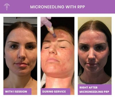 Microneedling with RPP – 2 FOY NYC